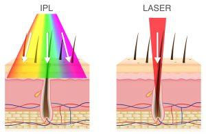 Quelle différence entre epilation lumiere pulsee et epilation laser